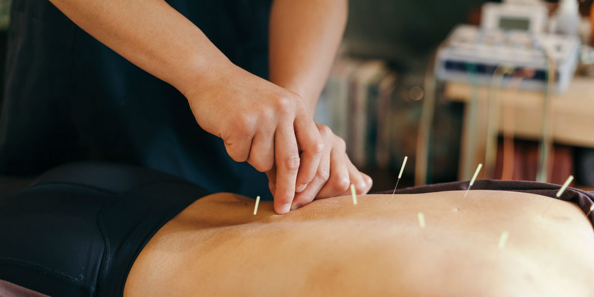 Acupuncture: Fun Facts
